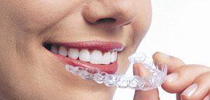 Dentes Mitos E Verdades Blog Clincia Dentaria Mint